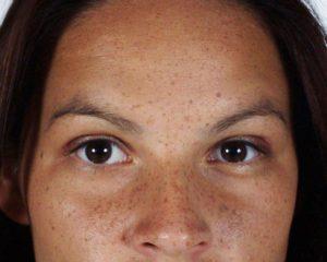freckled-face-1251424